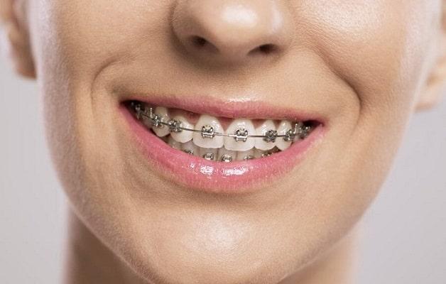 Lựa chọn cơ sở niềng răng tốt là cách tiết kiệm chi phí
