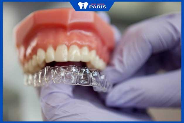 Niềng răng trong suốt invisalign phương pháp an toàn