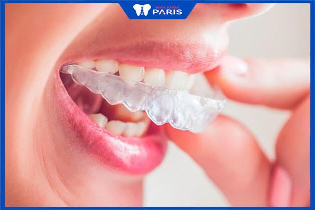 Thực sự niềng răng trong suốt vẫn gây đau và khó chịu