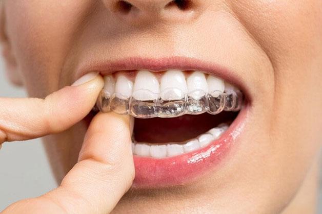 khái niệm về niềng răng trong suốt