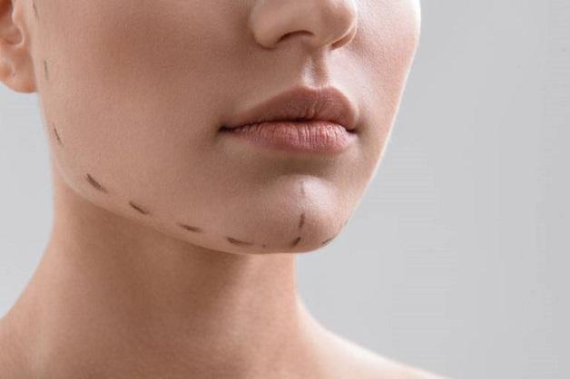 Sử dụng phương pháp phẫu thuật tạo khớp cắn chuẩn cho hàm