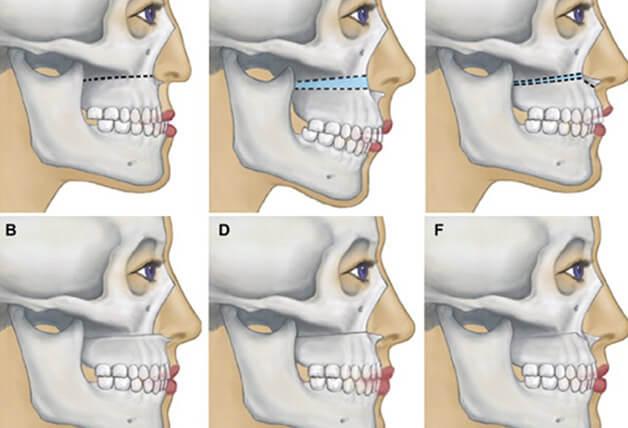 Phẫu thuật chỉnh hàm khắc phục khớp cắn sâu