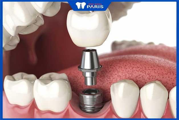 Cấy ghép răng implant không ảnh hưởng đến răng bên cạnh