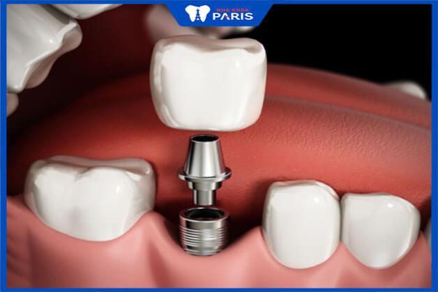 Các cách thực hiện cấy ghép Implant