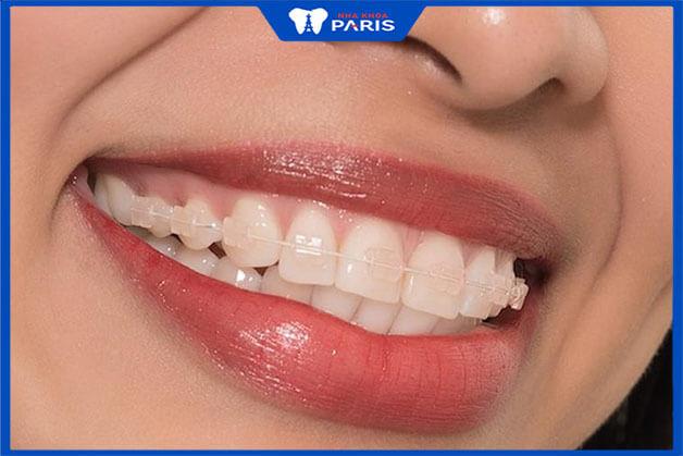 Phương pháp niềng răng mắc cài pha lê trong suốt