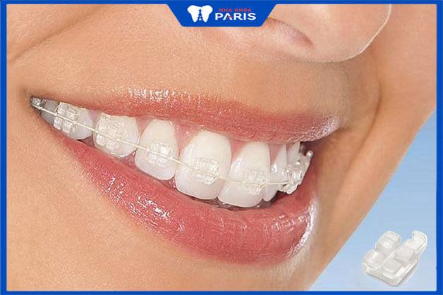 Phương pháp niềng răng mắc cài sứ trong suốt