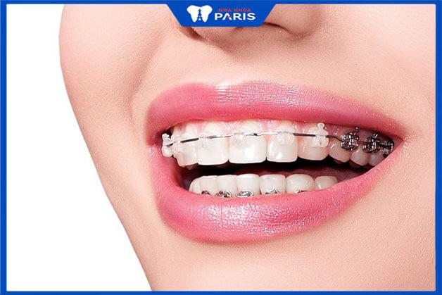 Các phương pháp niềng răng thưa