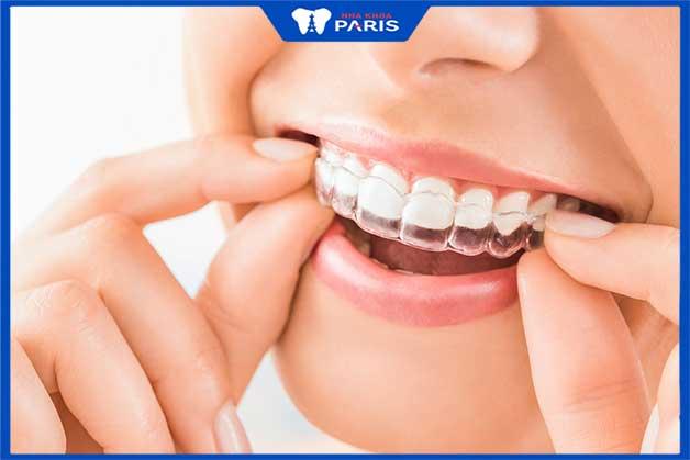 phương pháp niềng răng trong suốt