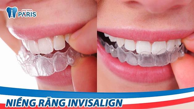 Quy trình thực hiện niềng răng invisalign
