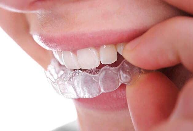 Hạn chế tháo niềng răng không mắc cài ra liên tục