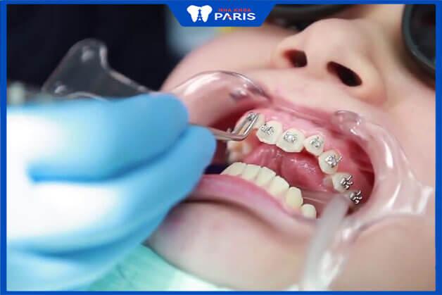 Quy trình thực thực iện của miềng răng thẩm mỹ