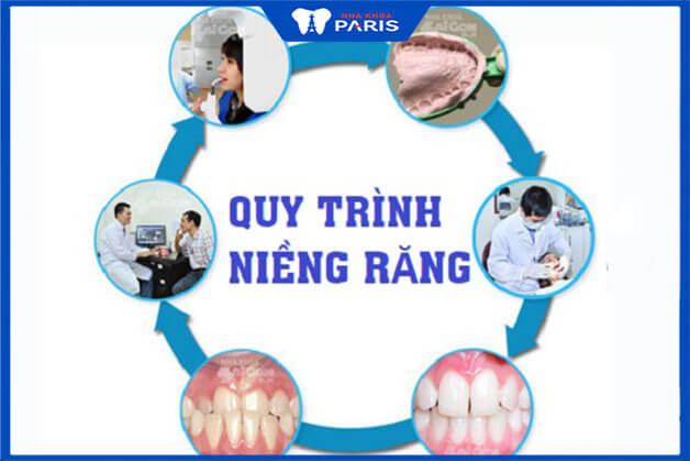 Quy trình niềng răng thưa