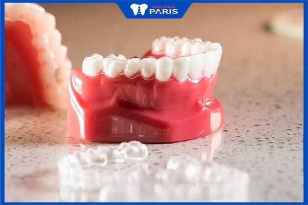 Quy trình thực hiện của niềng răng Clear Align