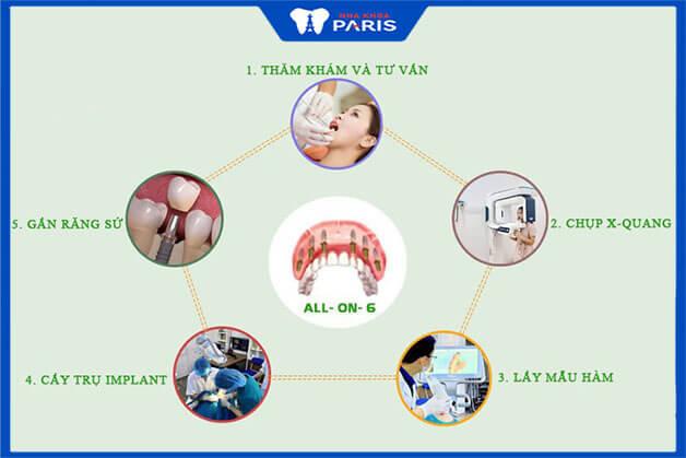 Các bước thực hiện trồng răng Implant All on 6