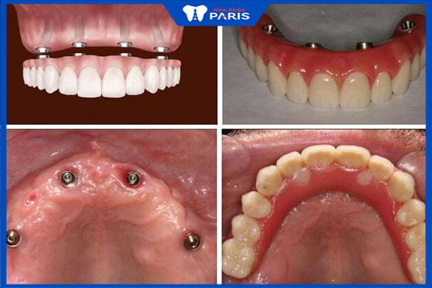 Quy trình thực hiện Implant All on 4