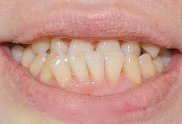 Niềng răng khắc phục rất tốt cho răng bị móm