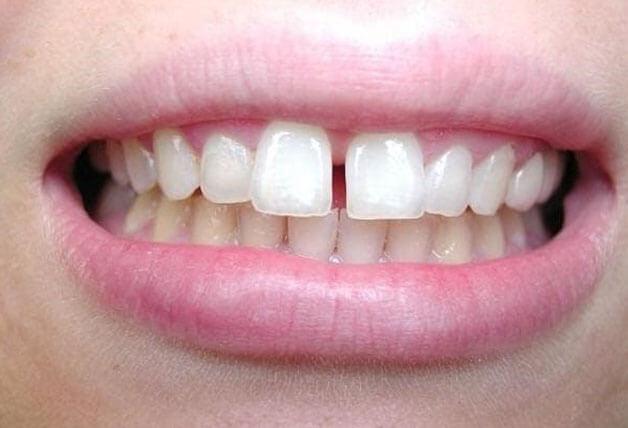 Phương pháp niềng răng phù hợp với răng bị thưa