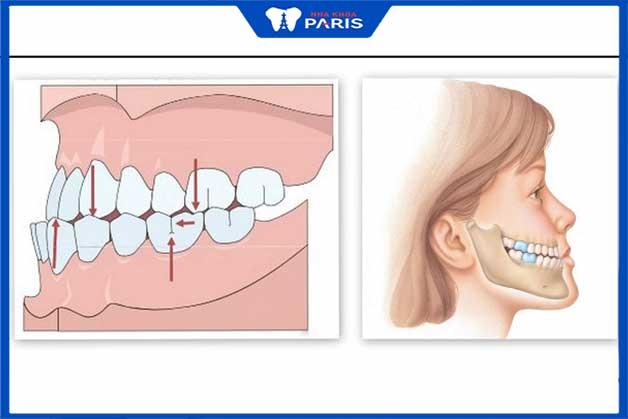 Nguyên nhân răng móm một phần do di chuyền