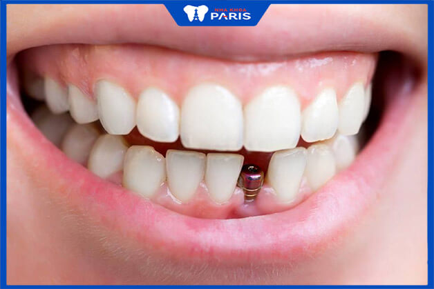 Sau khi phẫu thuật cấy ghép răng implant đau khoảng 1-2 ngày