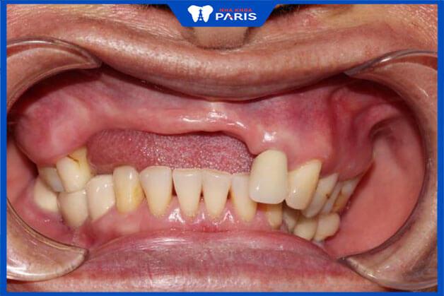 Khi bị thiêu xương răng bạn gặp nhiều vấn đề về ăn nhai và gây khó khăn cho việc khắc phục