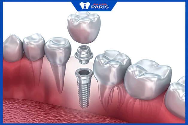 Vì sao trồng răng Implant có mức giá cao