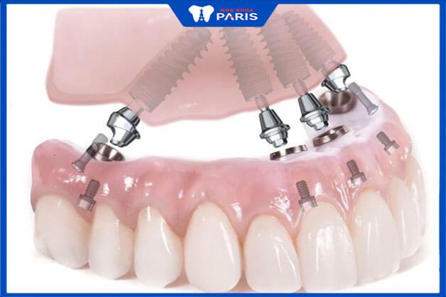 Thế nào là phương pháp Implant All on 4