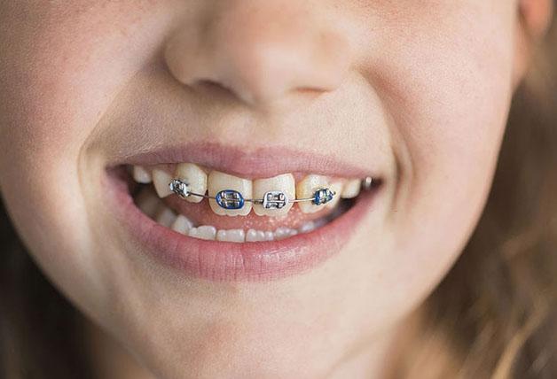 Niềng 2 răng cửa thưa sẽ mất khoảng 12 – 36 tháng