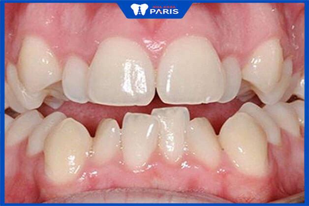 Tình trạng răng miệng ảnh hưởng tới mức giá