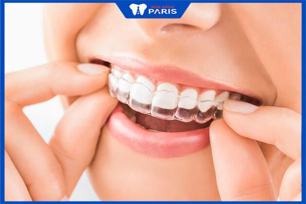 Trẻ em có thể niềng răng trong suốt được không