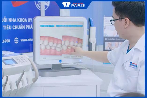 chuyên môn bác sĩ niềng 2 răng cửa