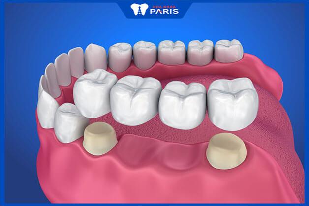 Phương pháp trồng răng bằng cầu răng sứ