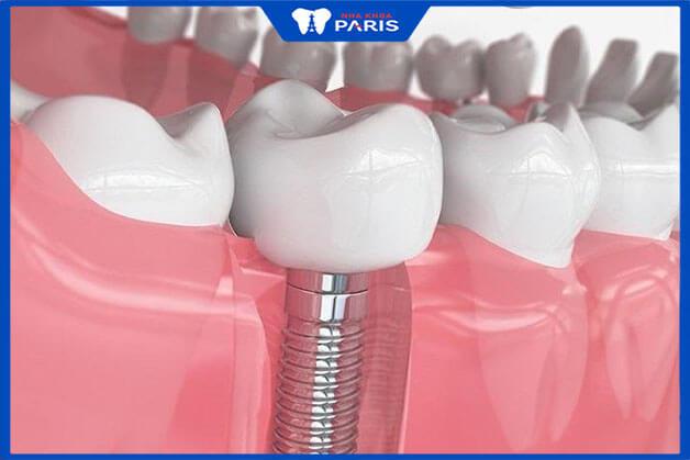 Phương pháp trồng răng hàm bằng implant