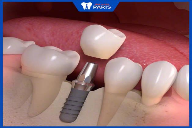 trồng răng implant cải thiện mất răng