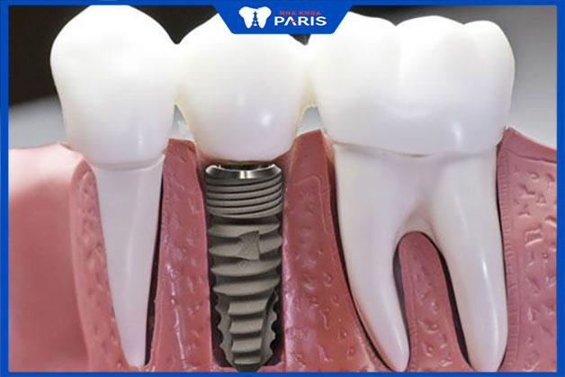 răng được cấy ghép implant có tính bền bỉ cao