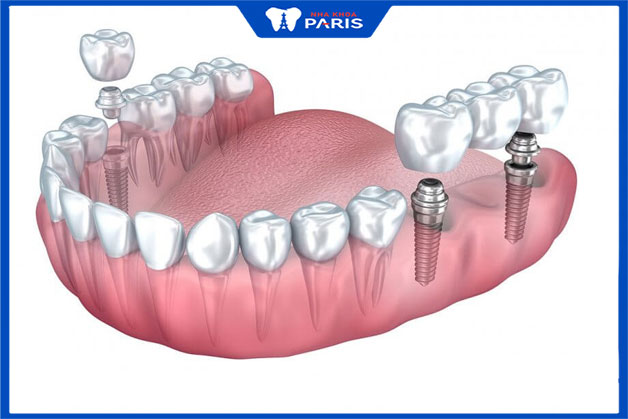 trồng răng implant nguyên hàm tăng tính thẩm mỹ