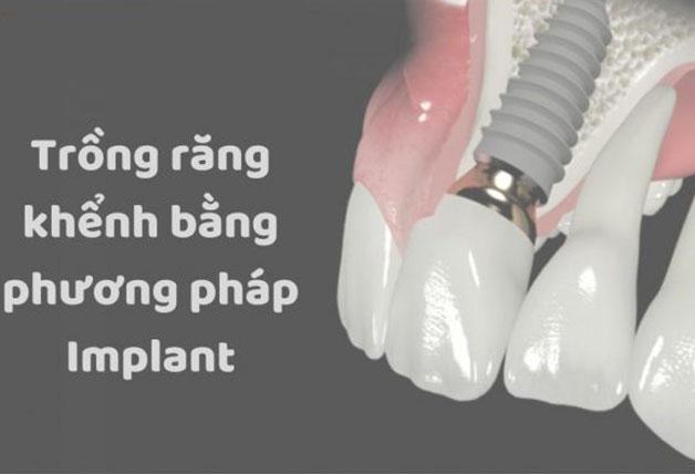 Phương pháp trồng răng khểnh bằng cấy ghép implant