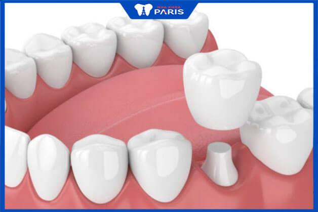 Trồng răng số 6 bằng phương pháp lắp cầu răng sứ