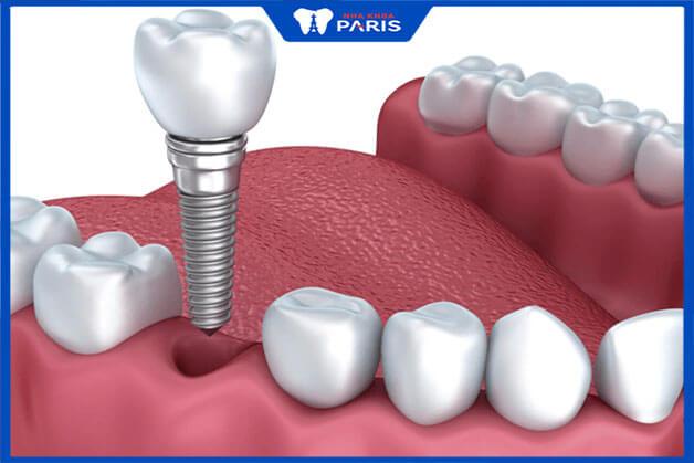 Kỹ thuật trồng răng số 6