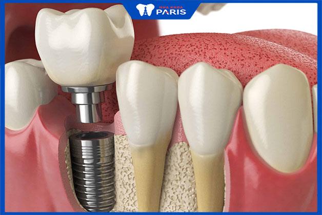 Trồng răng số 7 là phương pháp phổ biến