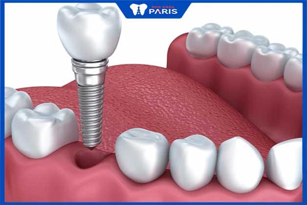Cấy ghép răng implant giúp ngăn ngừa các bệnh về răng miệng