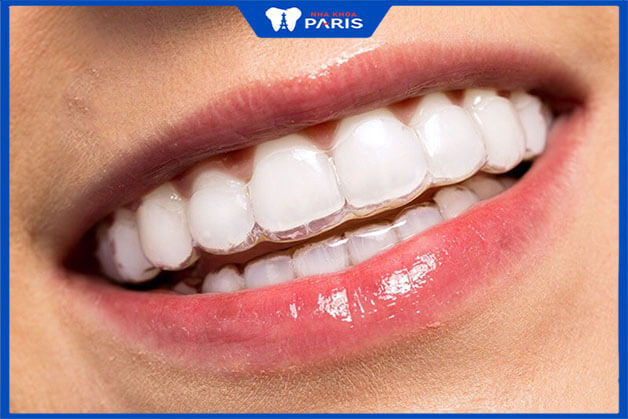 Ưu điểm lớn nhất của niềng răng Clear Align là tính thẩm mỹ cực kì cao