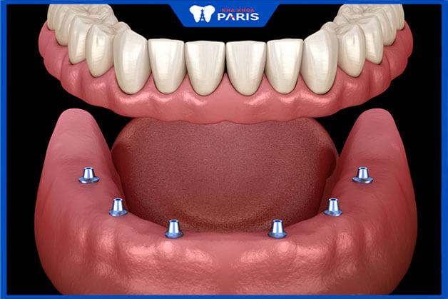 Trồng răng Implant All on 6 có độ bền và tuổi thọ cực kì cao