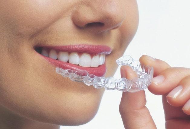 Niềng răng giúp cải thiện thẩm mỹ cho khuân miệng