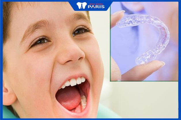 Niềng răng cho trẻ mang lại nhiều lợi ích