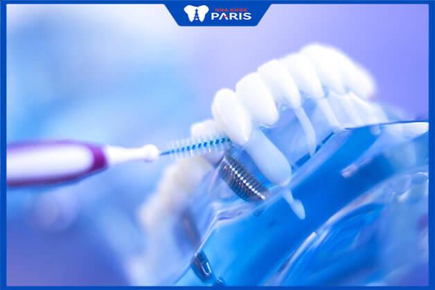 Chú ý vệ sinh răng miệng để không gây đau