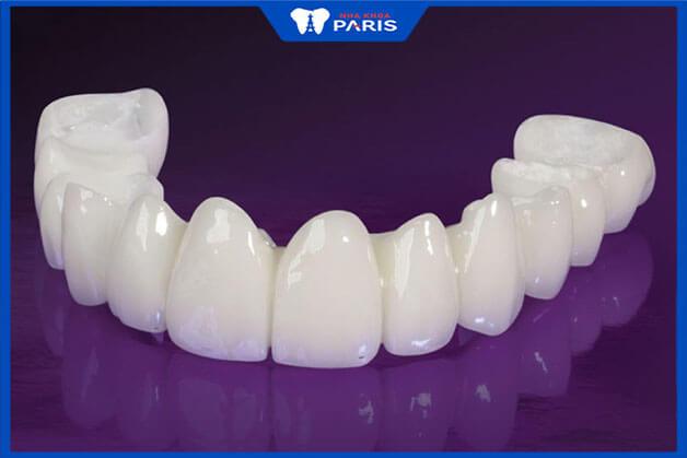 Vì có nhiều ưu điểm vượt trội nên trồng răng sứ có giá cao