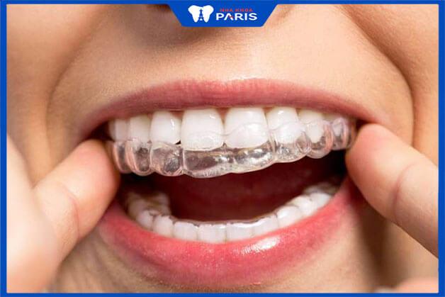 Do cơ địa khách hàng chính là yếu tối lớn nhất ảnh hưởng tới đau khi niềng răng