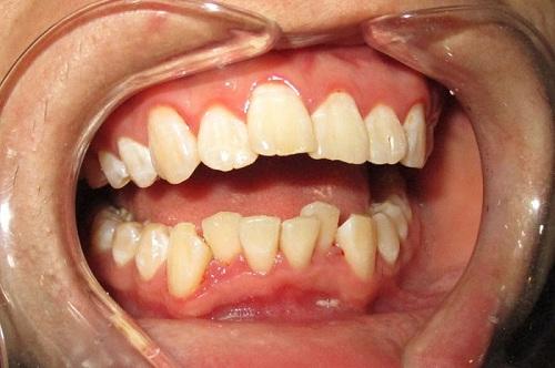 răng cửa lệch