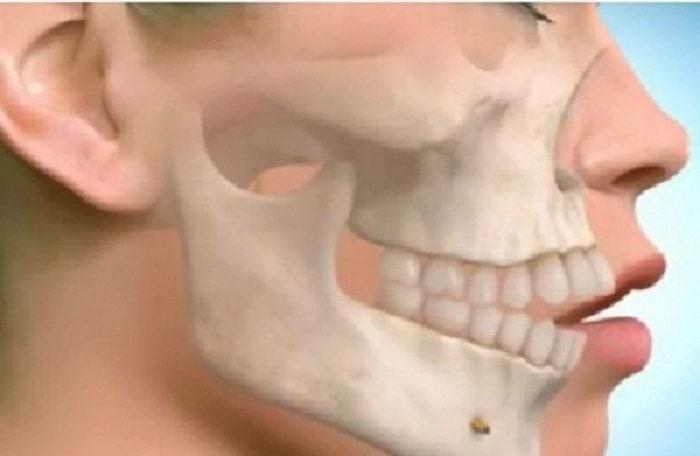 Sau khi thực hiện phẫu thuật xương hàm thành công