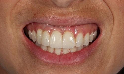 3 răng cửa to